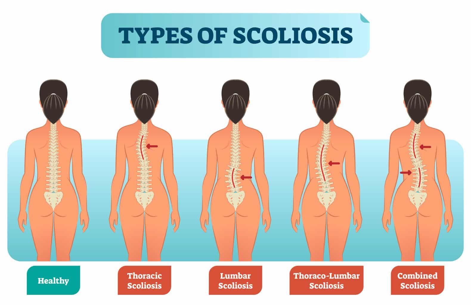 Scoliosi correlazione con piede